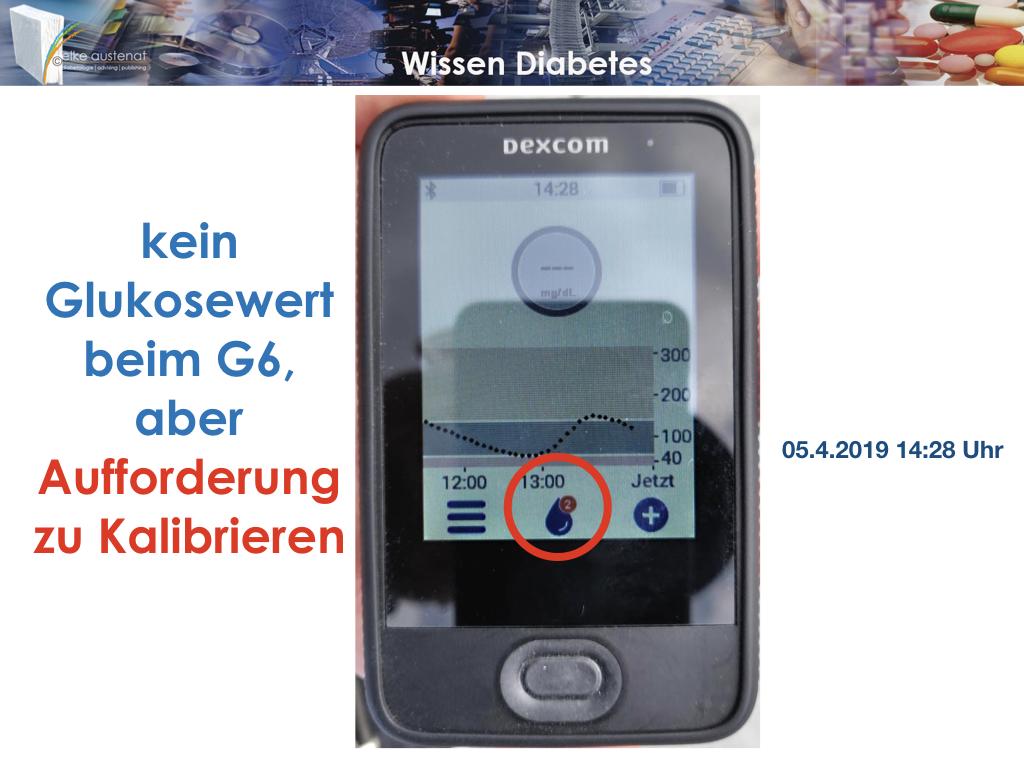 Dexcom Artikel 3.009